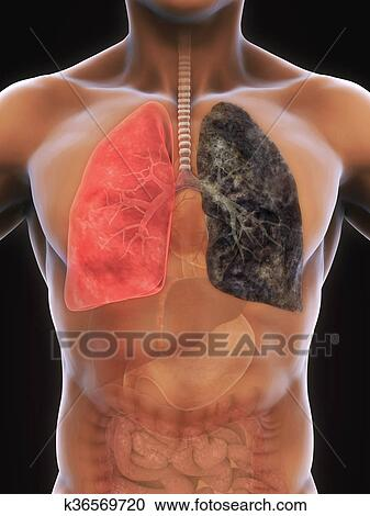 stock illustrations of healthy lung and smokers lung k36569720