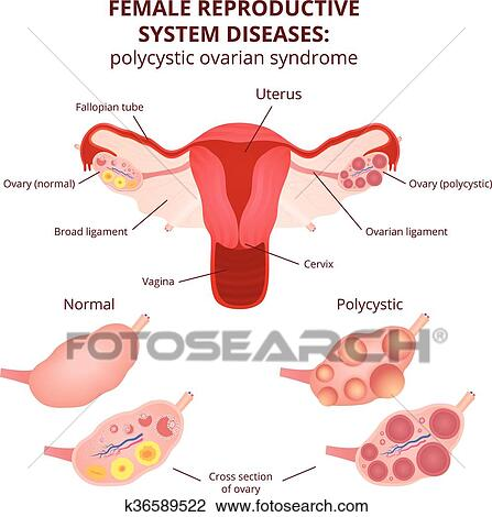 Clipart of female reproductive system k36589522 search clip art female reproductive system the uterus and ovaries scheme polycystic ovary syndrome ovarian cyst ccuart Image collections