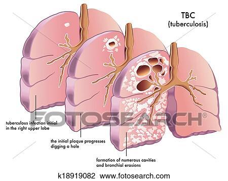 Clipart Tuberculose K18919082 Zoek Clipart Illustratie Fresnos