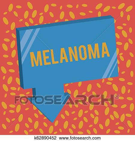 Writing note showing Melanoma  Business photo showcasing A malignant tumor  associated with skin cancer Benign moles Stock Image