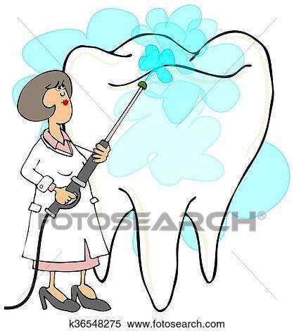 女性 歯科医 清掃 A 歯 イラスト K36548275 Fotosearch