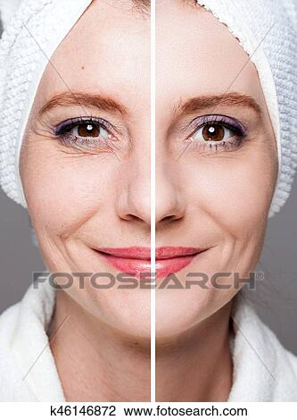 Happy Woman After Beauty Treatment Before After Shots Skin
