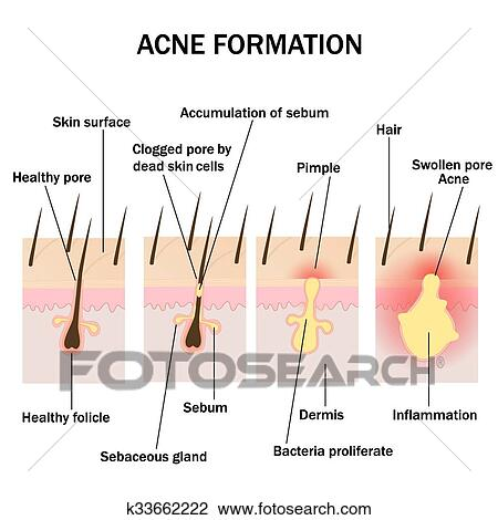 Clipart Of Formation Of Acne K33662222 Search Clip Art
