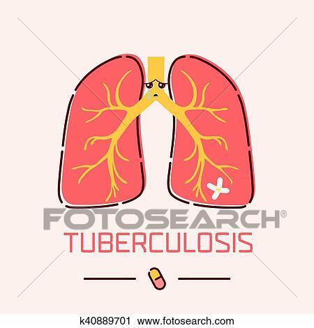 Clipart - tuberculosis, pulmones, cartel k40889701 - Buscar Clip Art ...