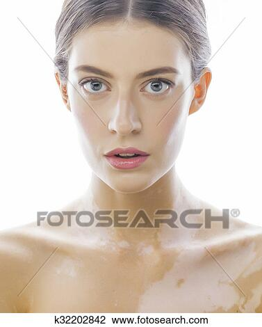 Beautiful Young Brunette Woman With Vitiligo Disease Close Up Isolated On White Positive Stock Image K32202842 Fotosearch