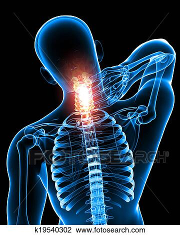 Clip Art Of Anatomy Of Male Neck Pain On Black K19540302 Search