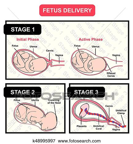 Clip Art Of Fetus Delivery Diagram With All Stages K48995997