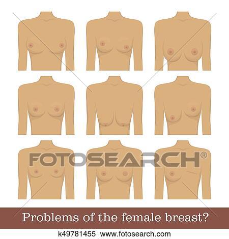unterschiedliche brust