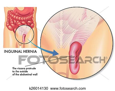 Clipart Of Inguinal Hernia K26014130 Search Clip Art Illustration