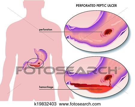 Clipart - perforado, úlcera péptica k19832403 - Buscar Clip Art ...