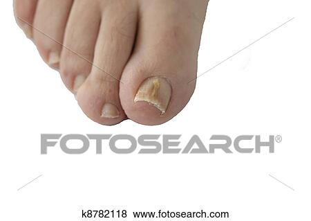 Fungal nail infection isolated Stock Photo   k8782118   Fotosearch