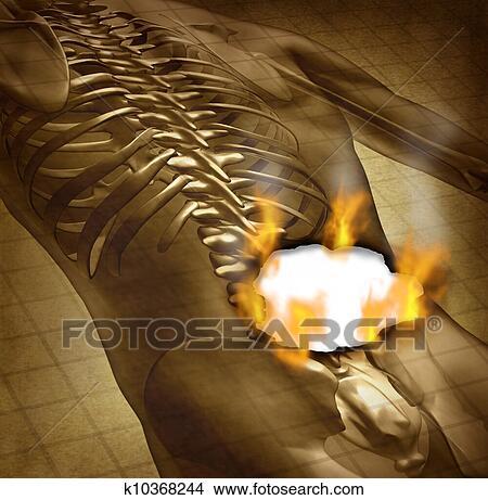 Schmerzhaftester Tod
