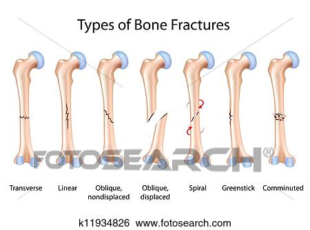 Clip Art of Types of bone fractures, eps8 k11934826 - Search Clipart ...