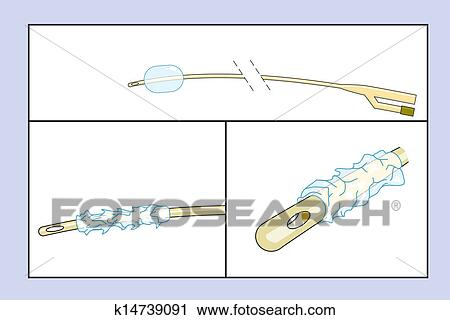 Clipart Of Diagram Of A Catheter K14739091 Search Clip Art