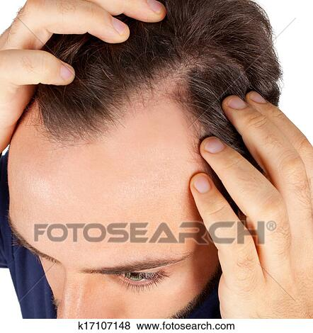 Images homme commandes perte cheveux k17107148 for Perte de cheveux homme