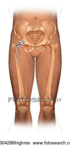 Stock Images of Front view of a body showing a total hip replacement ...