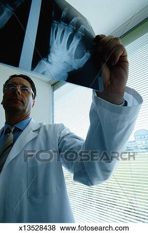 Fotos - radiólogo, mirar, radiografías, de, manos x13528438 - Buscar ...