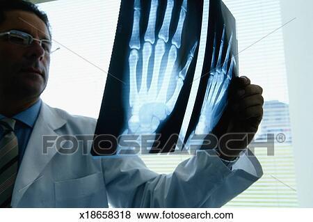 Fotos - radiólogo, mirar, radiografías, de, manos x18658318 - Buscar ...