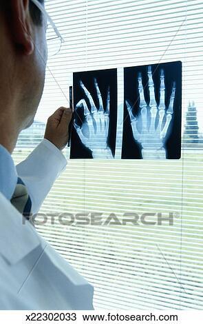 Colección de foto - radiólogo, mirar, radiografías, de, manos ...