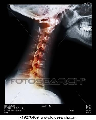 Stock Photograph of Sore neck vertebrae x19276409 - Search Stock ...
