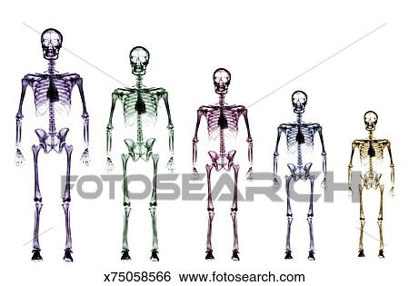 Stock Images Of Skeleton Growth Chart X75058566 Search Stock