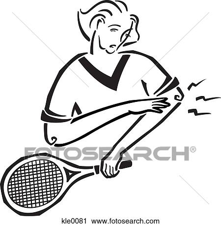 Clipart Of A Woman Suffering Tennis Elbow Kle0081