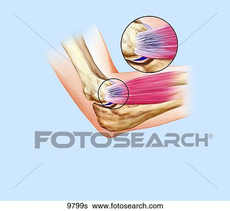 Stock Illustration Of Tennis Elbow Unlabeled 9799s Search Clip Art