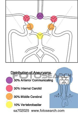 Gros plan, de, cercle willis, projection, les, distribution, de, frequence,  de, anévrismes, pour, certain, cérébral, arteries., orientation, figure, ...