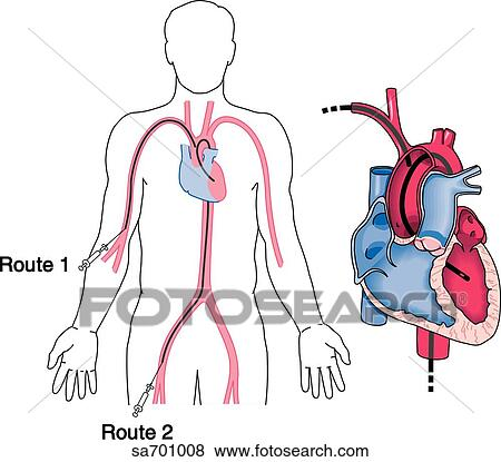 Stock Illustration Of Image On Left Shows Two Typical Entry Points