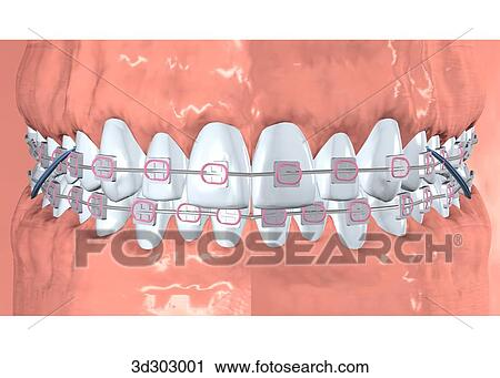Brace Teeth Clipart View of Teeth With Braces