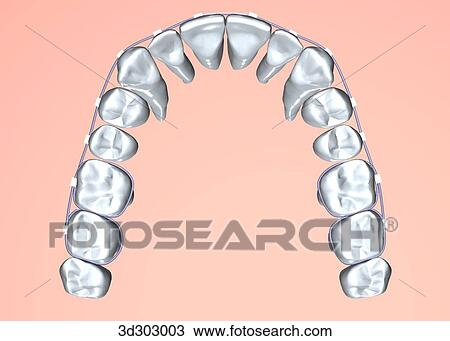 Brace Teeth Clipart of Type a Braces on Teeth