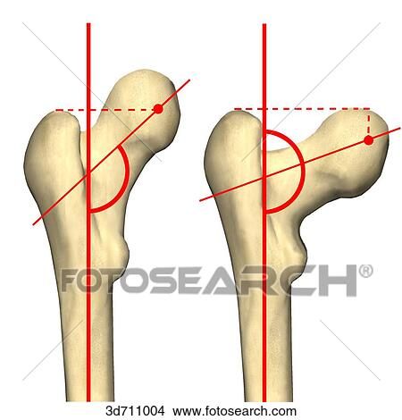 Drawings of Varying configurations of the angle of the hip joint ...