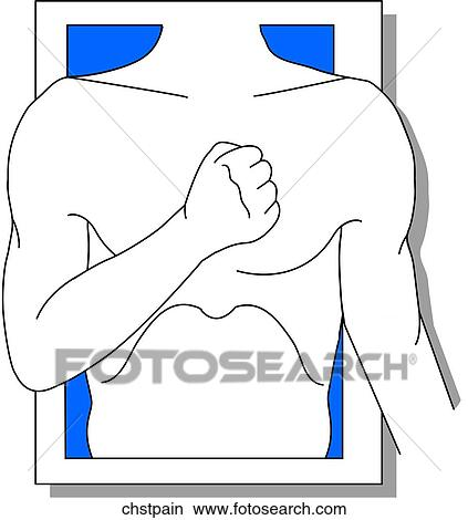 Dibujos - dolor de pecho, icono chstpain - Buscar Clip Art..