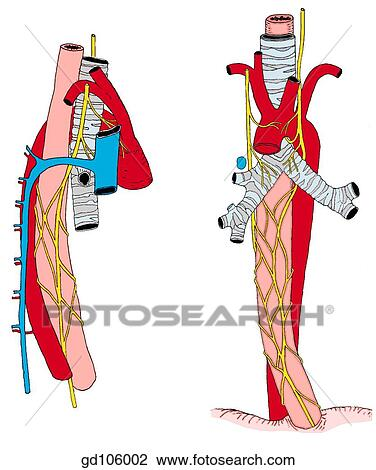 right and left vagus nerve esophageal nerve plexus and vagal trunks azygos vein and related structures