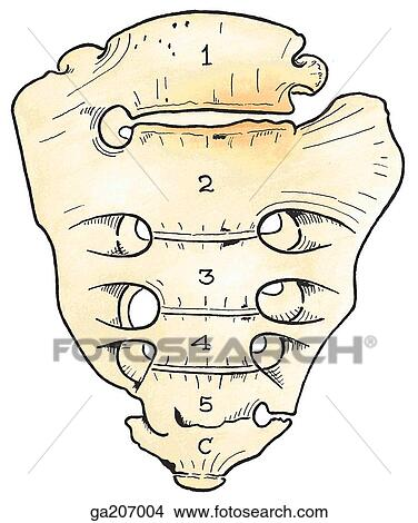 Drawings of Anterior view of transitional lumbosacral vertebra, with ...