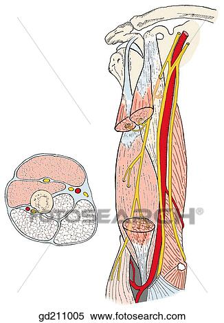 Stock Illustration Of Section Of Biceps Brachii Removed To