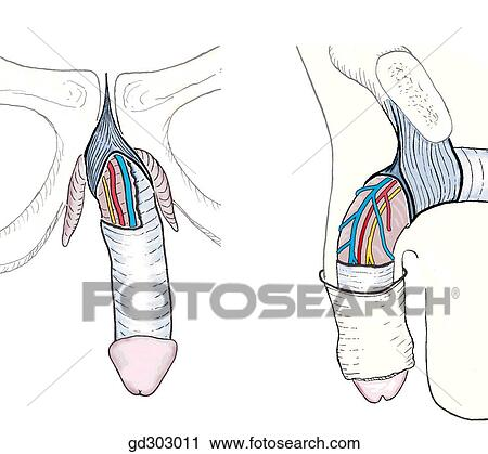 Clipart of Suspensory ligament of penis: a triangular band attached ...