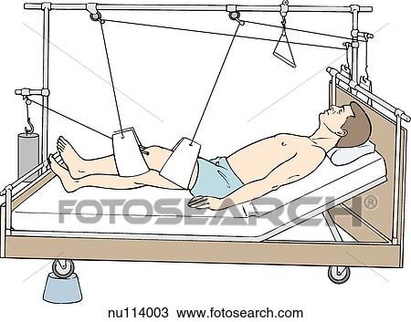 Balanced Suspension Traction Using Slings Male Patient In Hospital Bed With Skeletal Applied To Injured Leg Which Is Supported