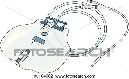 Clip Art Of Foley Catheter A Urinary Catheter With A Double Lumen