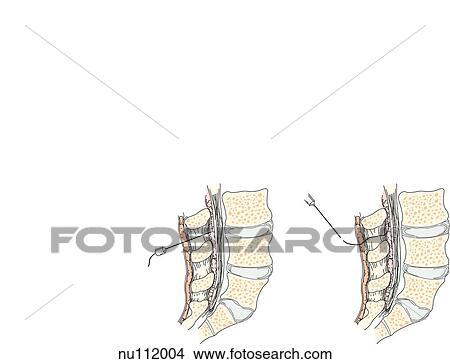 Drawings of Sagittal section of lumbar area of spinal column showing ...