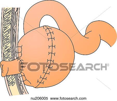 Stock Illustration of Illustration of a segment of ileum that has ...