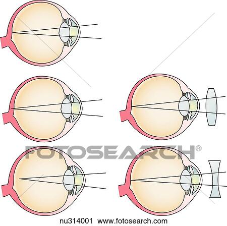 Clipart of Illustration demonstrating how corrective lenses aid in ...