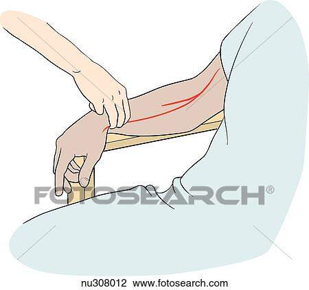 Clip Art - mano, de, enfermera, en, derecho, brazo, de, paciente ...