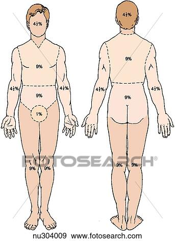 Outline Of Male Body With Areas And Percentages Indicated To Calculate Total Burn Surface Area Left Anterior View Right Posterior