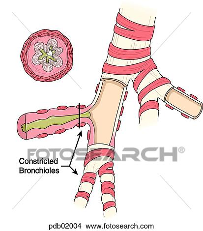 Drawings of Drawing of bronchus showing constricted bronchioles ...