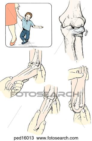 Drawing of Insert: injury occurs during a fall while holding hands ...