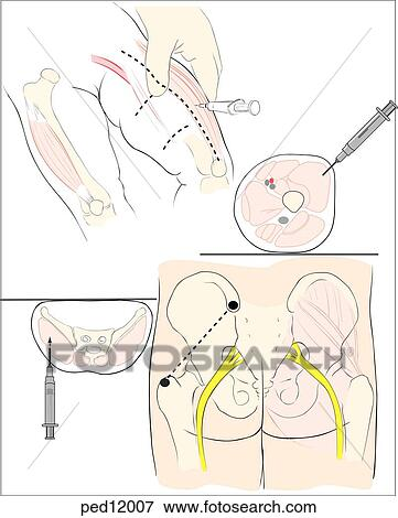 stock illustration of technique for intramuscular injection in
