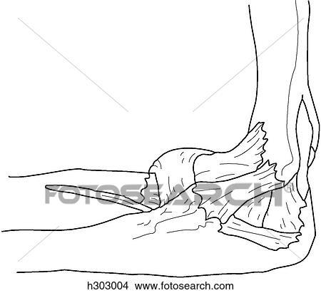 Dibujos - huesos, y, ligamentos, de, codo h303004 - Buscar Clip Art ...