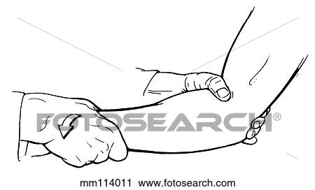 Clipart of Forearm supination mm114011 - Search Clip Art ...