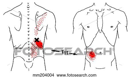 drawings of iliocostalis thoracis m trigger points mm204004